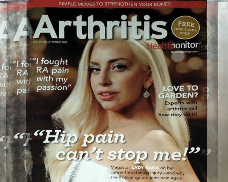 arthritis-celebrity-lady-gaga